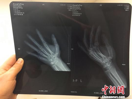 犯罪嫌疑人张某的左手小指折断 宜都警方 供图