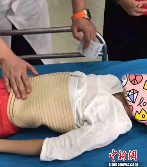 图为受伤儿童正在北京儿童医院接受治疗,目前无生命危险。受伤儿童家属供图