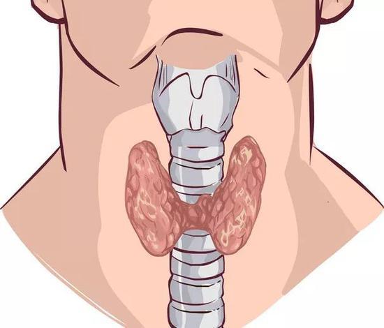 甲状腺结节离癌到底有多远?4个习惯给甲状腺松绑