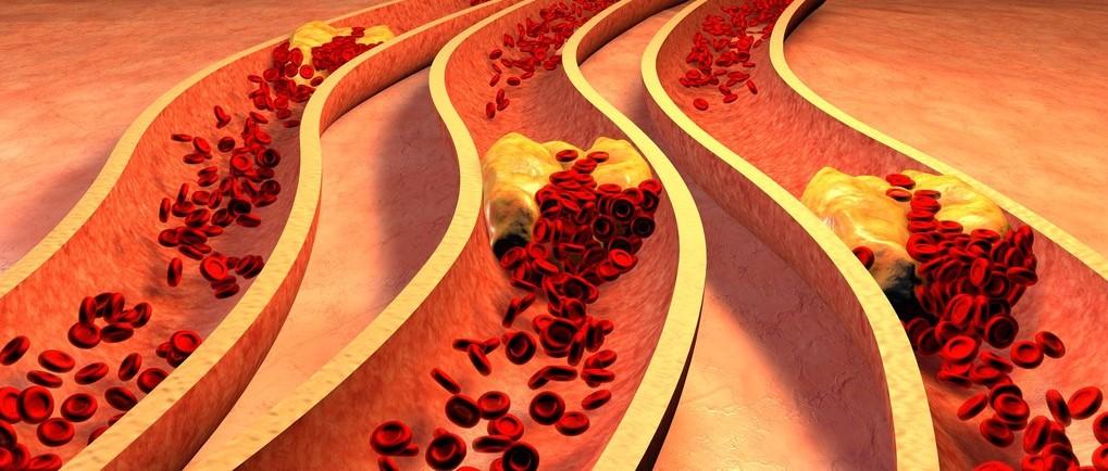 身上3处疼 可能是血管堵了!做6件事不给血管添堵