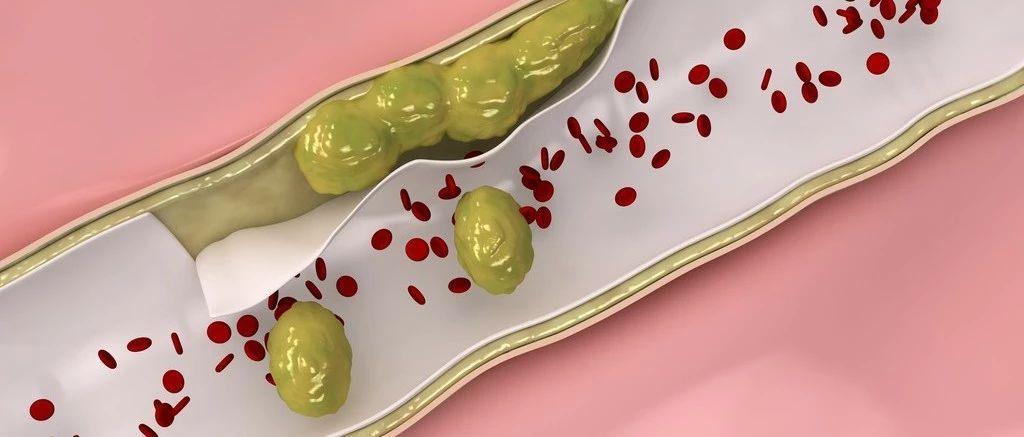 睡觉流口水是血栓前兆?专家教你4招一眼识别