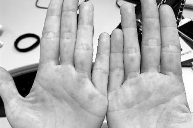 37岁的她高烧40℃ 医生说她得了手足口病
