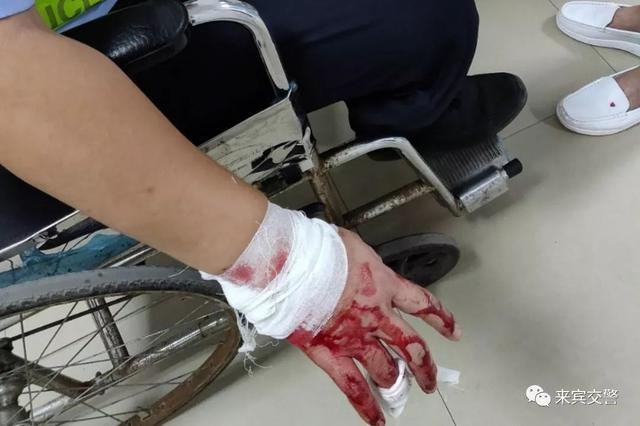 广西男子强行冲卡致辅警受伤 理由竟是忘带驾驶证