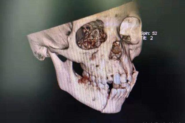 家长忘拔车钥匙 南宁一男童出事故面部撕裂10多厘米