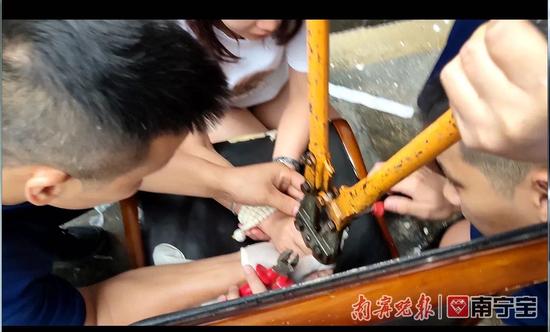 消防部门提醒:还买这款网红戒指?南宁已有多人被伤