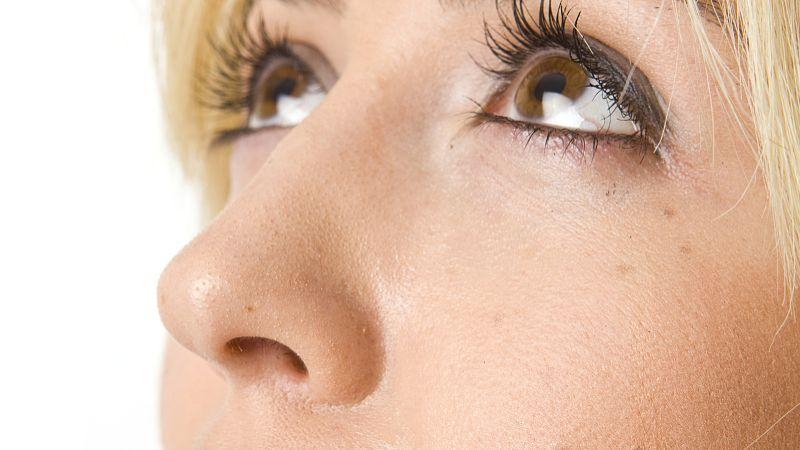 为什么年轻女性也会长黄褐斑?