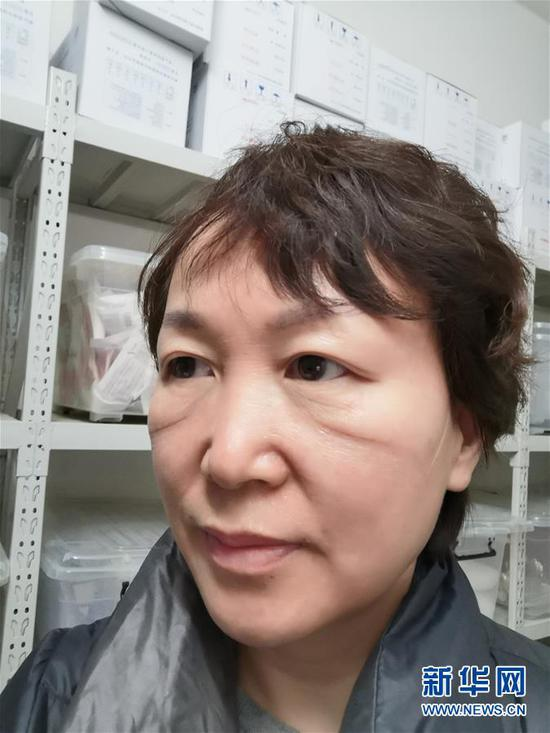 武汉大学人民医院感染科护士长谌利琴穿了一天防护服后,口罩的印迹清晰可见(2月1日摄)。新华社发