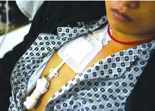 蔡尚松的脖子上系着一根红头绳,家人希望能给他带来好运,早日脱离痛苦。