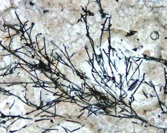 化石显微图片。(图片来源:中科院南京地质古生物研究所)