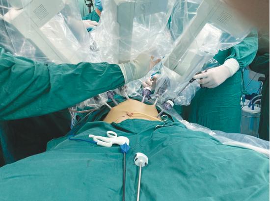 手术现场。 西秀区人民医院供图