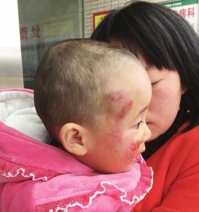 小孩右脸被擦伤