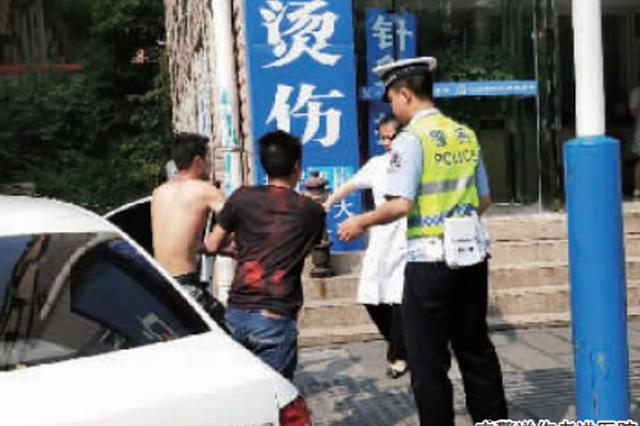 遵义:工人火机点燃香蕉水 把自己烧进医院