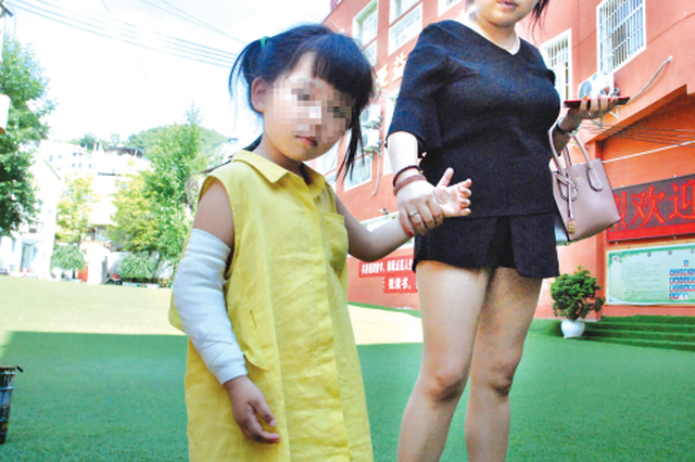 4岁小女孩幼儿园里摔骨折