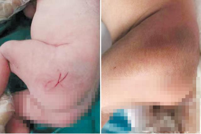 """新生儿臀部""""被划三刀"""" 院方:划痕并非手术中锐器所"""