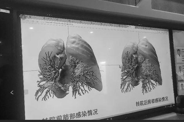 与世界共战疫情 中国主动分享防治新冠肺炎的宝贵经验