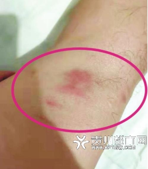 杨先生受伤部位。