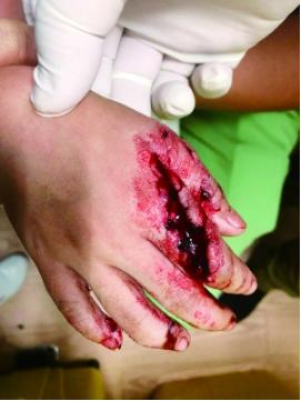 被咬伤的手