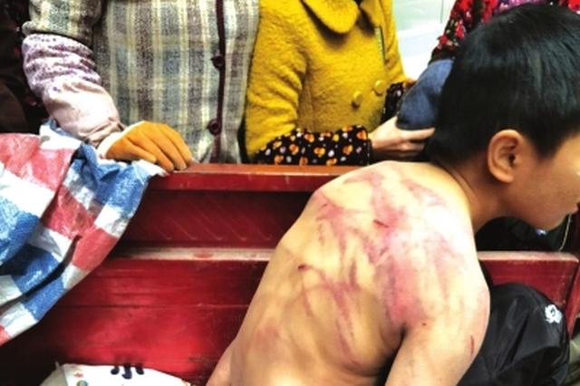 贵阳三桥10岁男孩为何露宿家门口? 被发现时伤痕累累
