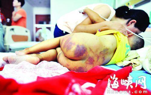 父亲家暴成性 将3岁儿子按进马桶后扔下二楼(图)