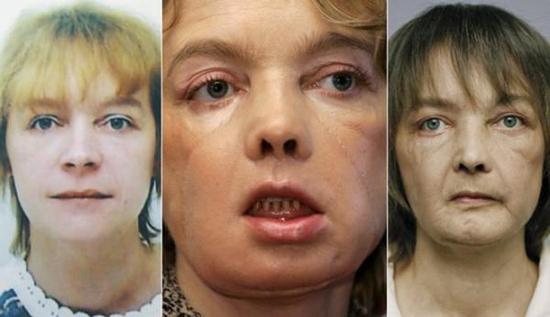 """世界首位""""换脸""""者死亡 距接受手术已10年"""