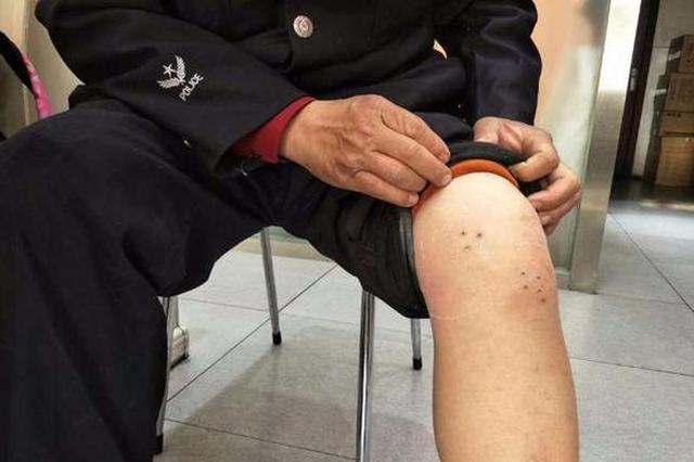 蚂蝗钻进男子左腿三年仍存活 最大一条长8厘米