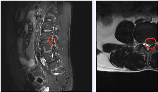 腰椎间盘突出,经常腿疼腰疼?脊柱外科这项微创技术帮您有效缓解症状