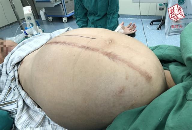 武汉男子肚子比孕妇还大 医生取出五十斤重巨型肿瘤