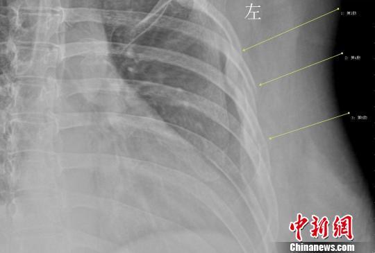 年轻女白领因咳嗽导致三根肋骨骨折 刘姗姗 摄