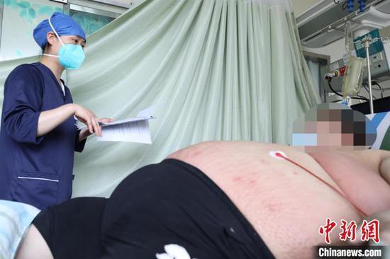 周先生入院接受治疗。 李晗 摄