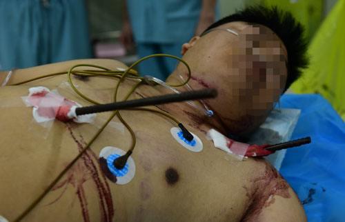 湖北一建筑工遭钢筋穿腹腔 医生10小时手术抢救成功