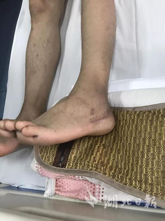 ▲尹文杰在部队受伤留下的疤痕