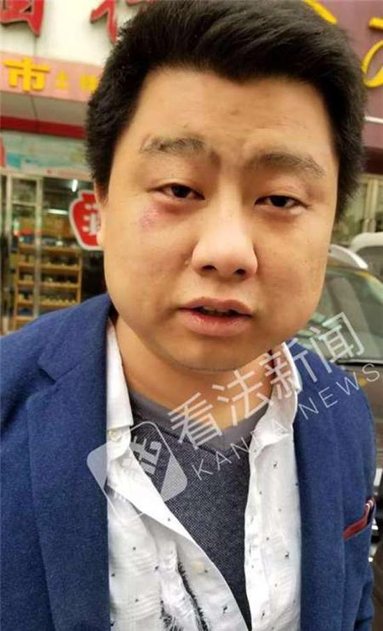 被打律师王志伟在事发现场。 本文图片均来自看法新闻