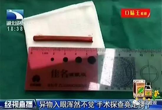 筷子长达6厘米