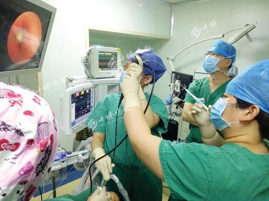 医生正在支气管镜下紧张地手术。