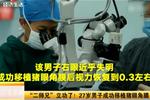 """""""二师兄""""立功了! 27岁男子成功移植猪眼角膜"""