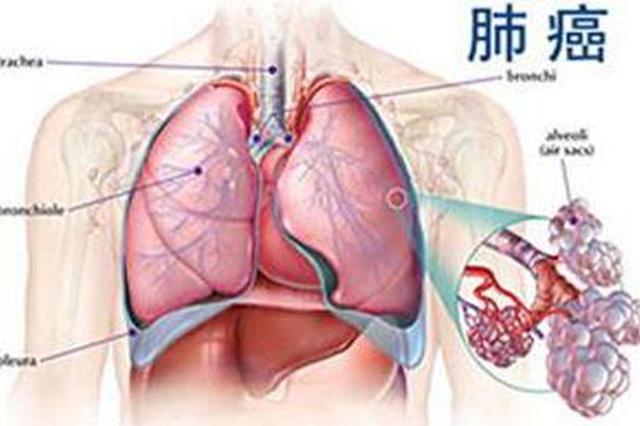 """男子肺部有个""""绿豆""""小结节 没想到竟是早期肺癌"""