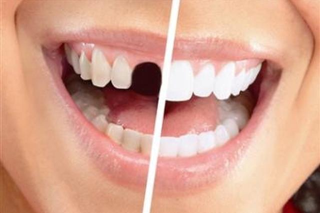武汉小伙子刷牙力量太大 前磨牙颈部竟被刷断