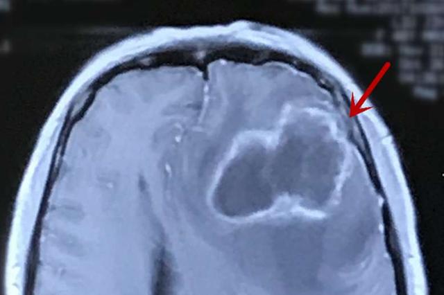 湖北一女子收养流浪猫狗意外感染细菌 脑里长出脓包