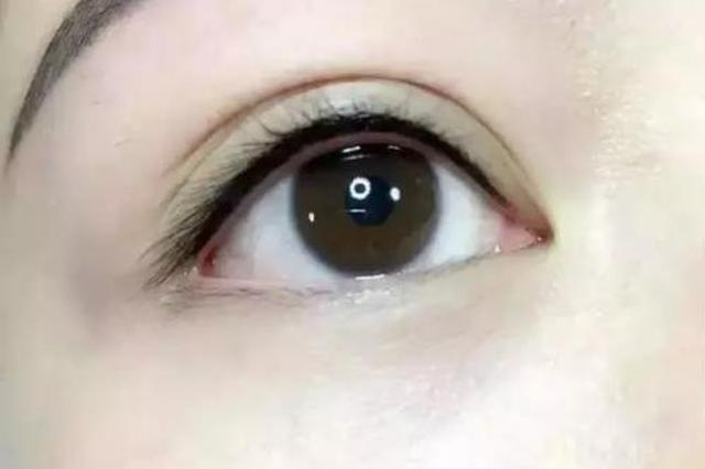 """女白领爱美纹上美瞳线 3个月后眼睛""""状况百出"""""""