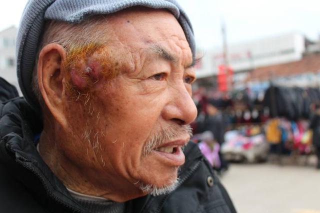 男子头部一小块皮肤破溃 未及时治疗拖成皮肤癌
