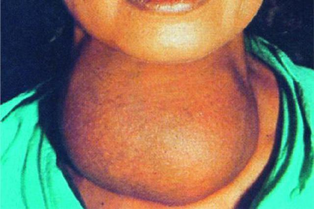 七旬婆婆甲状腺疯长30年 脖子上像扛了一个小西瓜