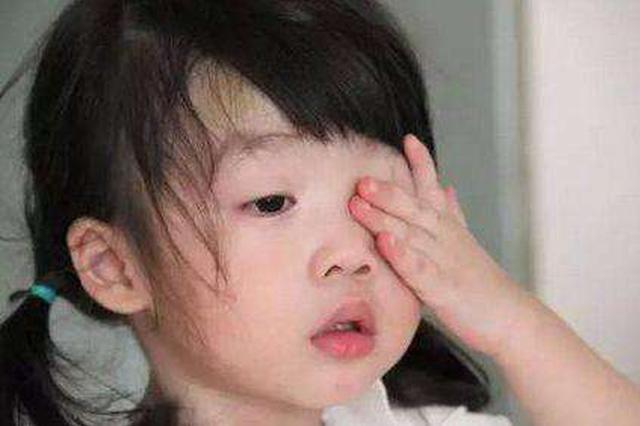 孝感4岁女童眼痒数月 就医后发现螨虫爬满睫毛