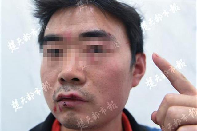 客户签收快递字迹潦草引冲突 快递员脸部被抓伤