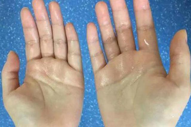 湖北一妙龄女子一见到心仪男性 双手就汗如雨下