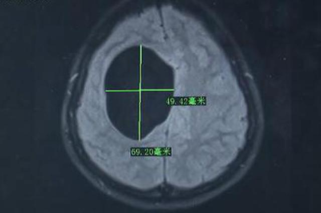 吓人!女子时常头痛呕吐 一查CT颅内竟有7条虫