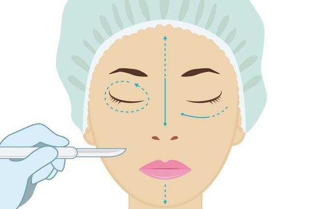"""想做双眼皮却伤了上睑肌 女子3次手术整成""""瞌睡眼"""""""