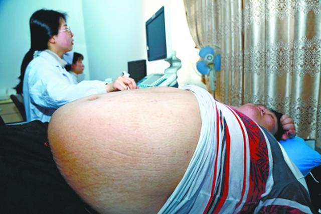 走路吃力缺乏安全感 黄冈372斤小?#25351;?#26469;汉切胃减肥
