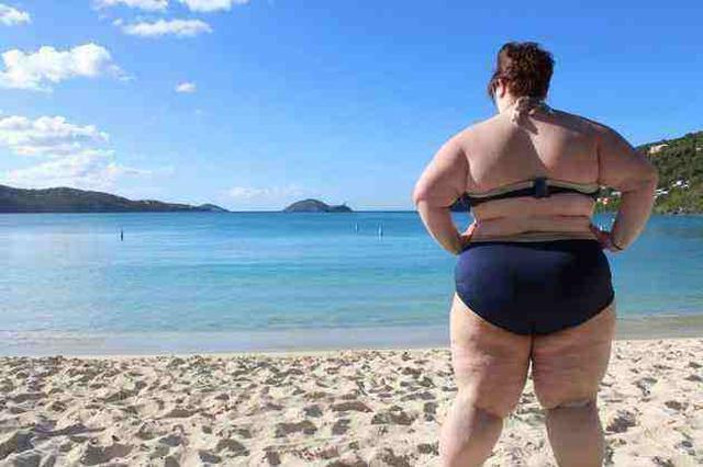 黄冈22岁小伙儿体重372斤 通过手术缩胃2/3