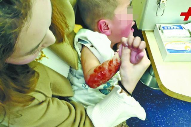 男童高铁上不慎被开水烫伤 武汉女护师紧急施救