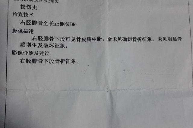 网友投诉:拼多多买平衡车 骑行中突然断电被摔致骨折